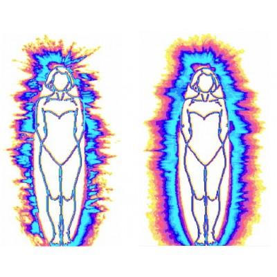 Диагностика ГРВ - метод газорязрядной визуализации